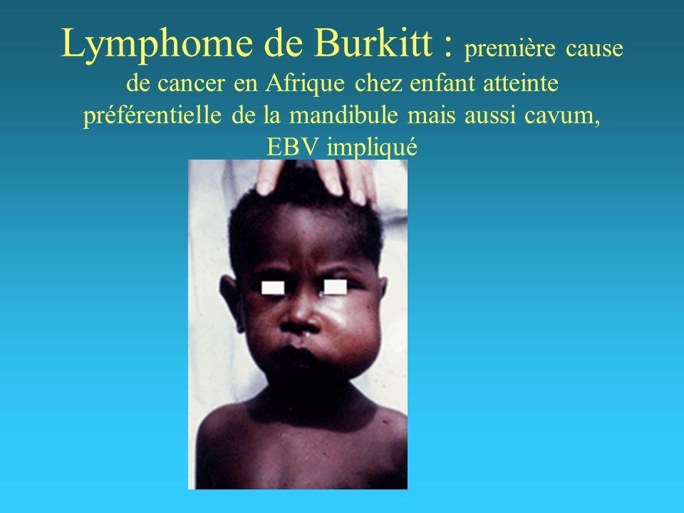 Lymphome de Burkitt : première cause de cancer en Afrique chez enfant atteinte préférentielle de la mandibule mais aussi cavum, EBV impliqué