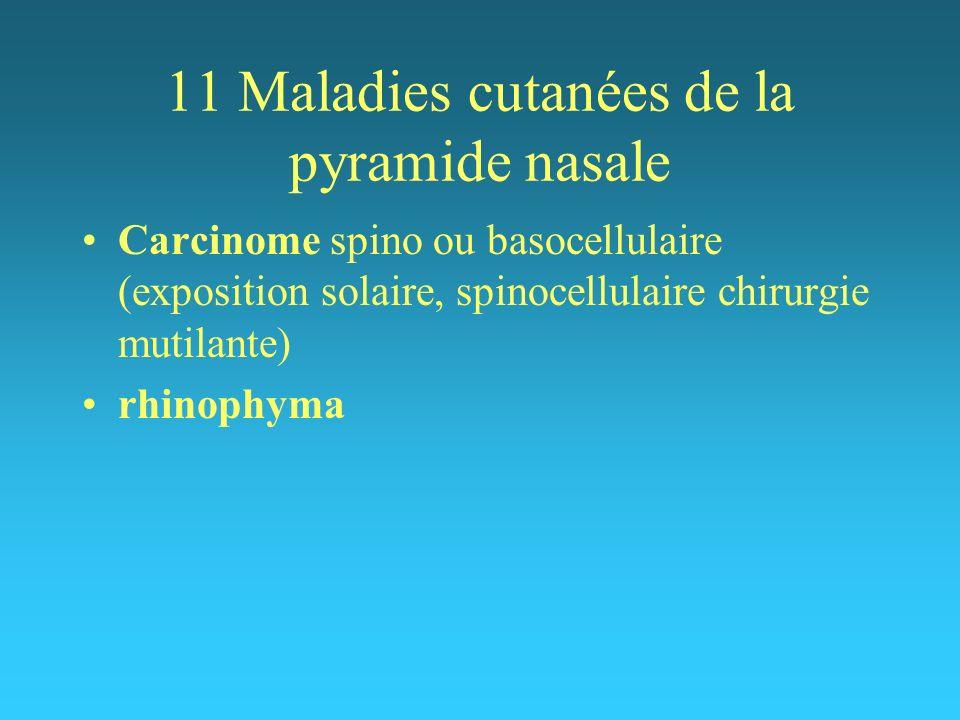 11 Maladies cutanées de la pyramide nasale Carcinome spino ou basocellulaire (exposition solaire, spinocellulaire chirurgie mutilante) rhinophyma