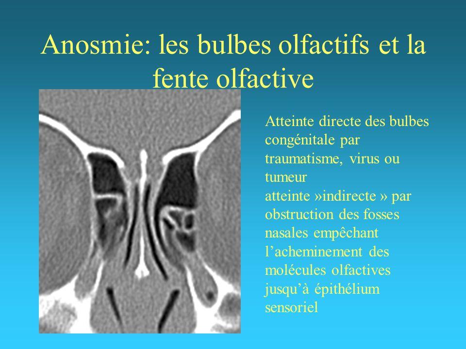 Anosmie: les bulbes olfactifs et la fente olfactive Atteinte directe des bulbes congénitale par traumatisme, virus ou tumeur atteinte »indirecte » par