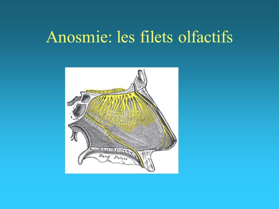 6 Pathologies rhino-sinusiennes inflammatoires Sinusites chroniques inflammatoires polypeuses Sinusites chroniques inflammatoires non polypeuses Rhinites médicamenteuses Rhinite atrophique (ozène)
