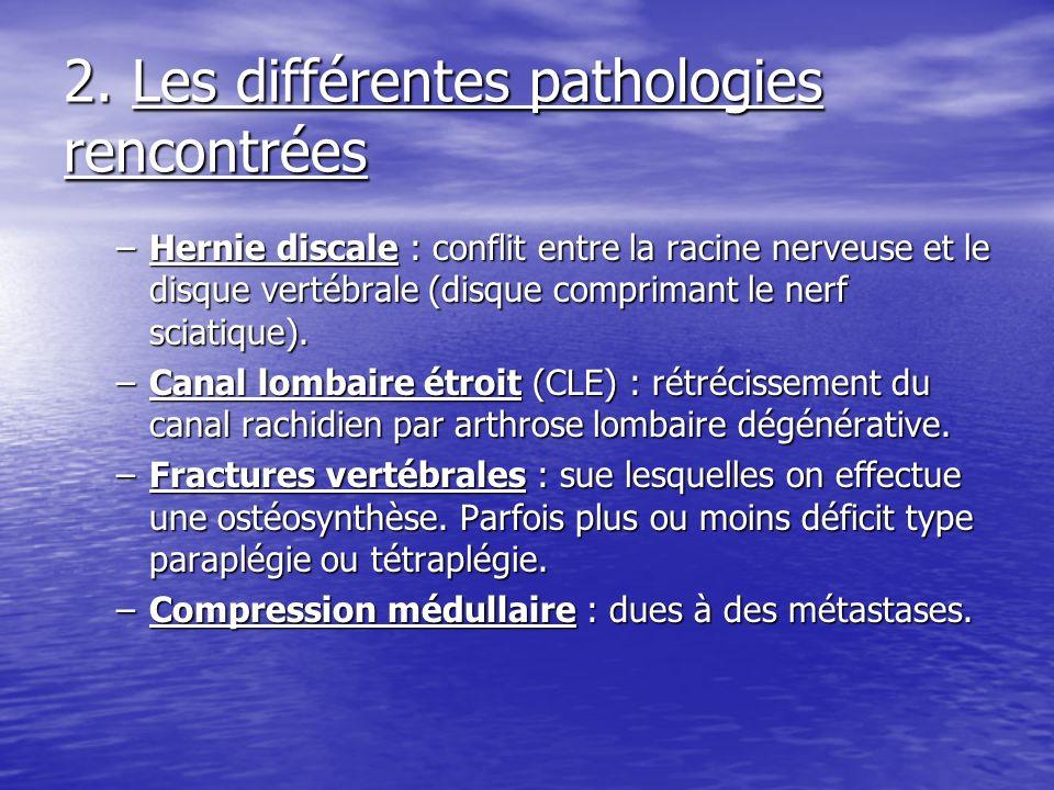 2. Les différentes pathologies rencontrées –Hernie discale : conflit entre la racine nerveuse et le disque vertébrale (disque comprimant le nerf sciat