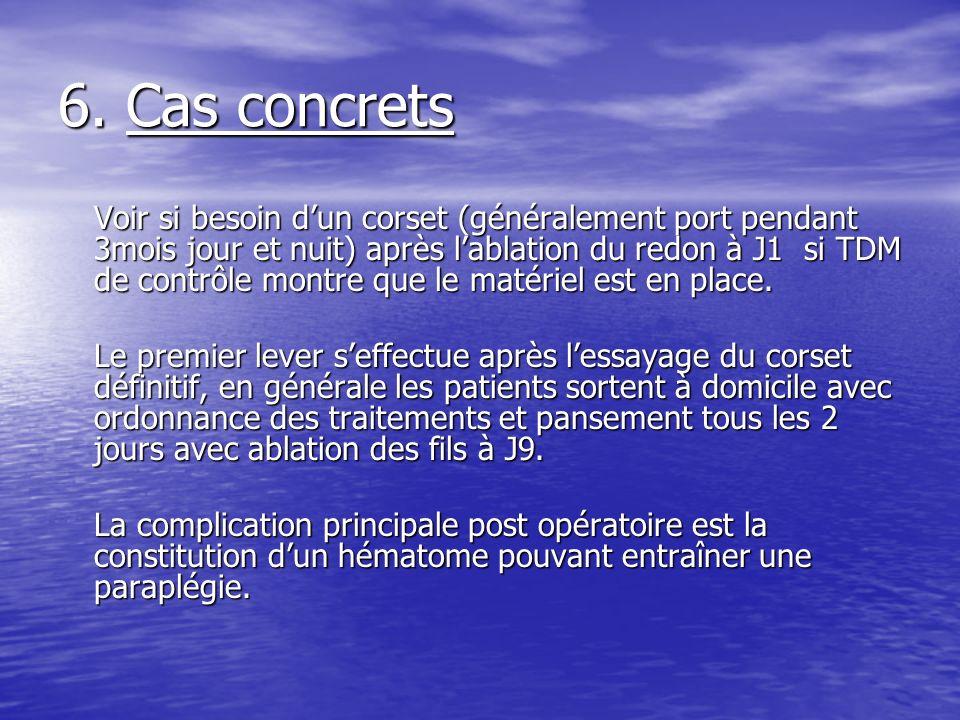 6. Cas concrets Voir si besoin dun corset (généralement port pendant 3mois jour et nuit) après lablation du redon à J1 si TDM de contrôle montre que l
