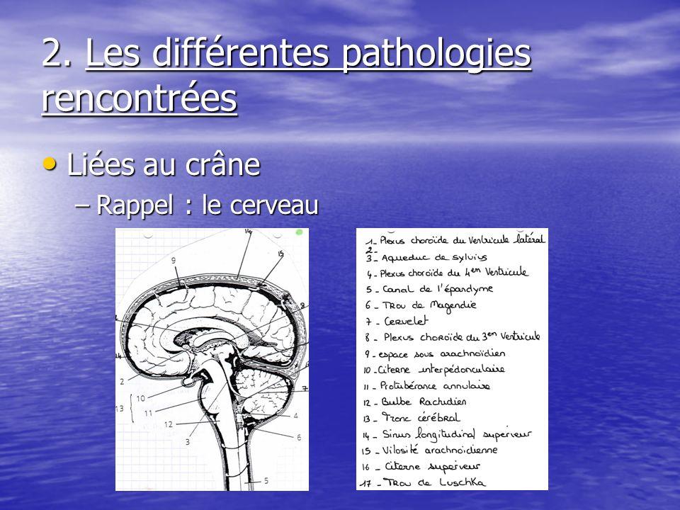 2. Les différentes pathologies rencontrées Liées au crâne Liées au crâne –Rappel : le cerveau
