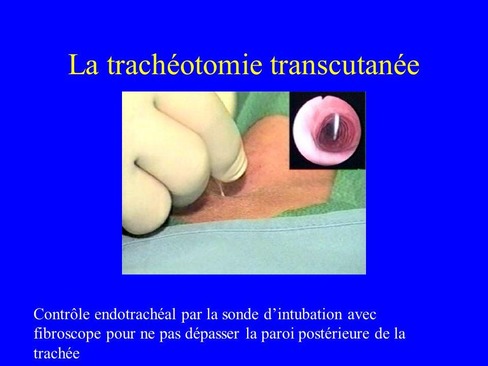 La trachéotomie transcutanée Contrôle endotrachéal par la sonde dintubation avec fibroscope pour ne pas dépasser la paroi postérieure de la trachée