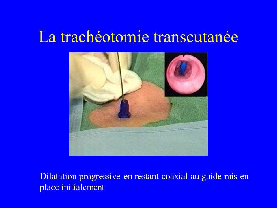 La trachéotomie transcutanée Dilatation progressive en restant coaxial au guide mis en place initialement