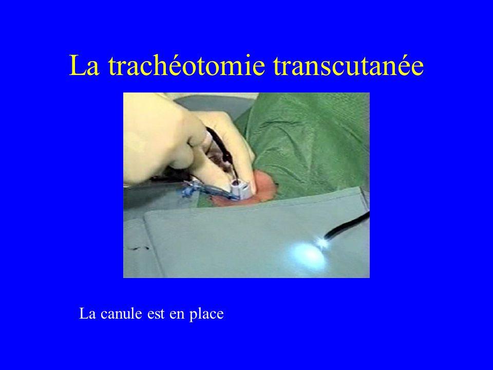 La trachéotomie transcutanée La canule est en place