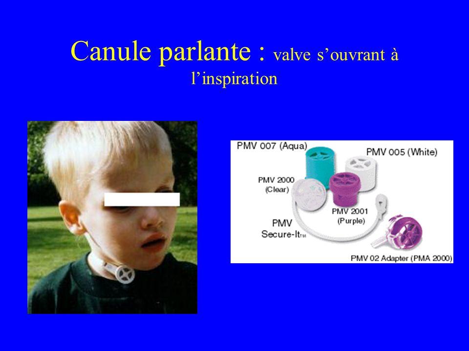 Canule parlante : valve souvrant à linspiration