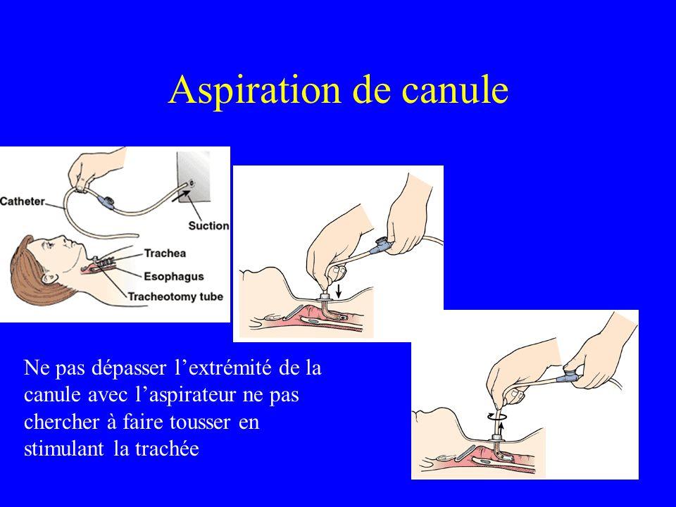 Aspiration de canule Ne pas dépasser lextrémité de la canule avec laspirateur ne pas chercher à faire tousser en stimulant la trachée