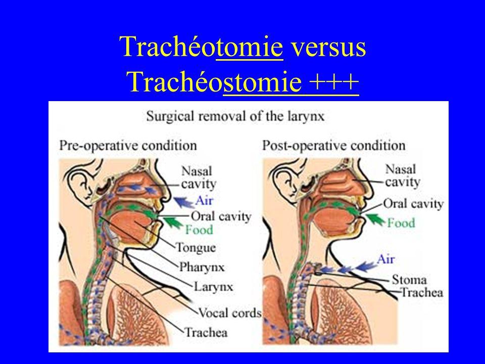 Trachéotomie versus Trachéostomie +++