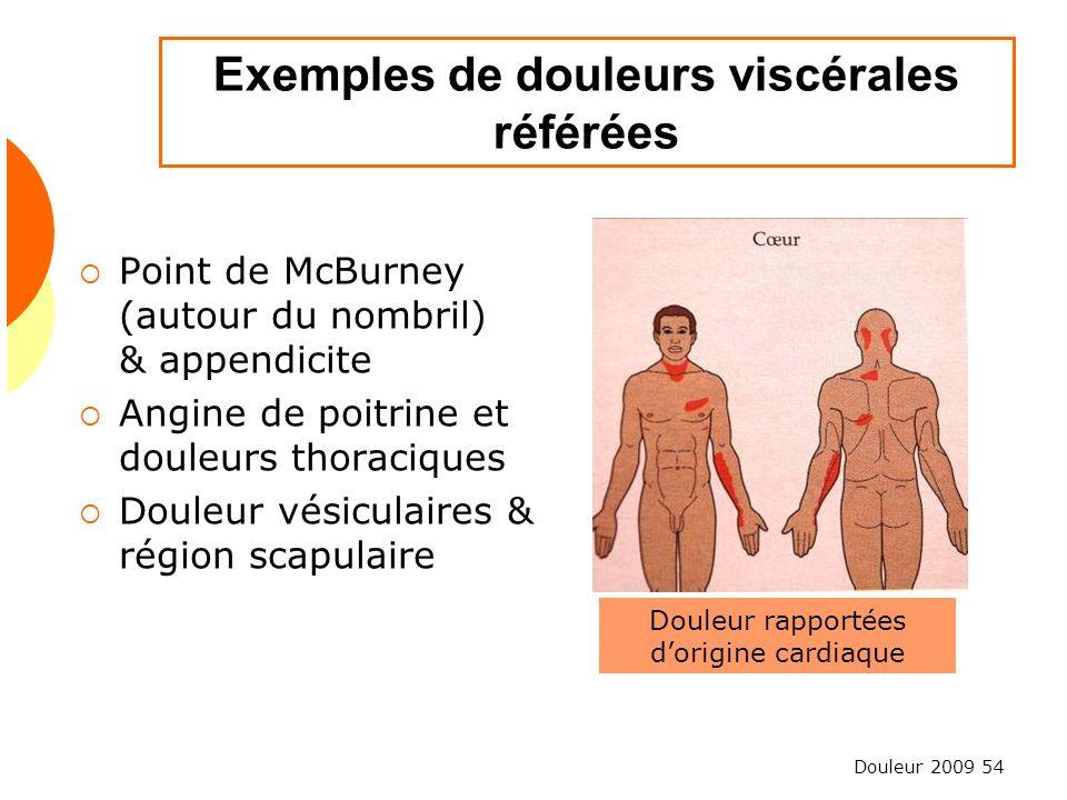 Douleur 2009 54 Exemples de douleurs viscérales référées Point de McBurney (autour du nombril) & appendicite Angine de poitrine et douleurs thoracique