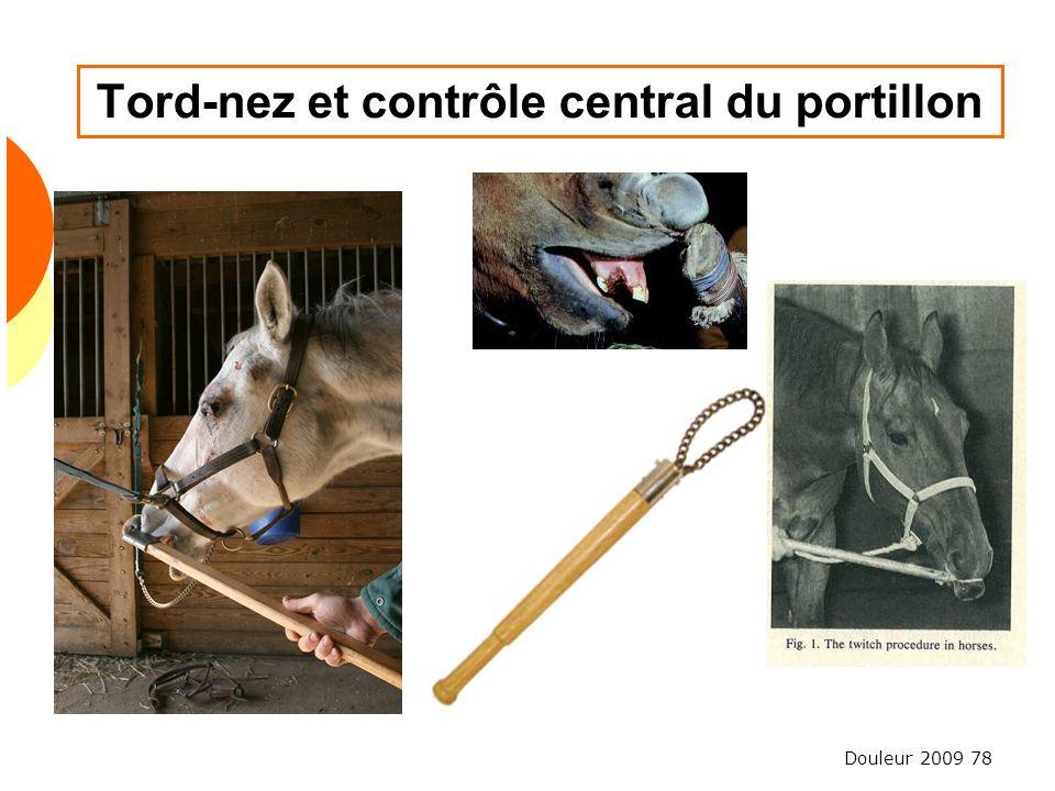 Douleur 2009 78 Tord-nez et contrôle central du portillon