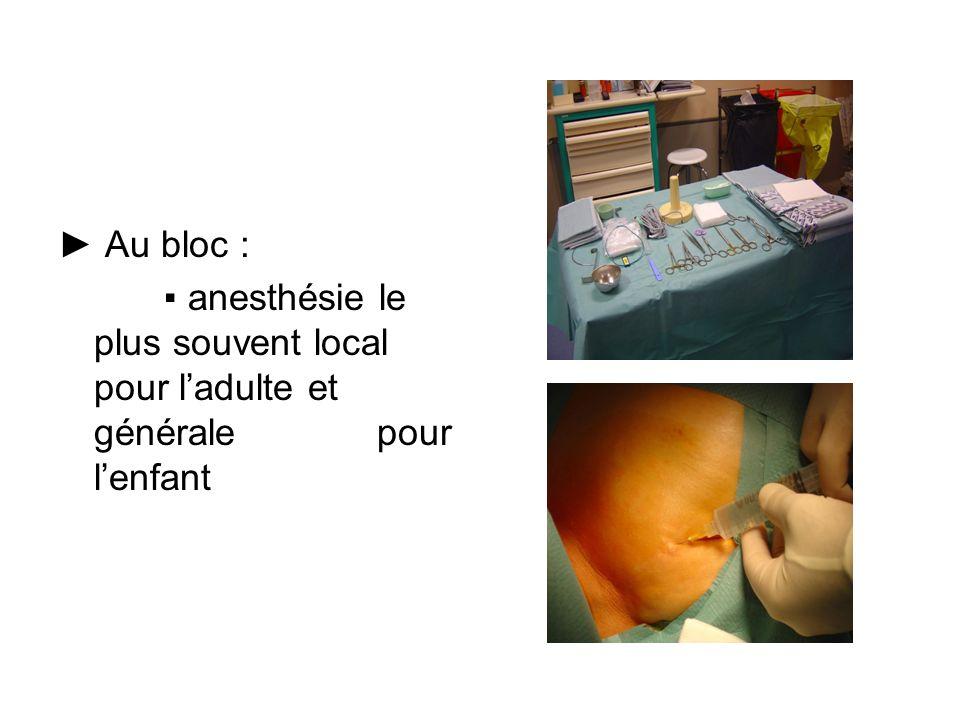 Au bloc : anesthésie le plus souvent local pour ladulte et générale pour lenfant