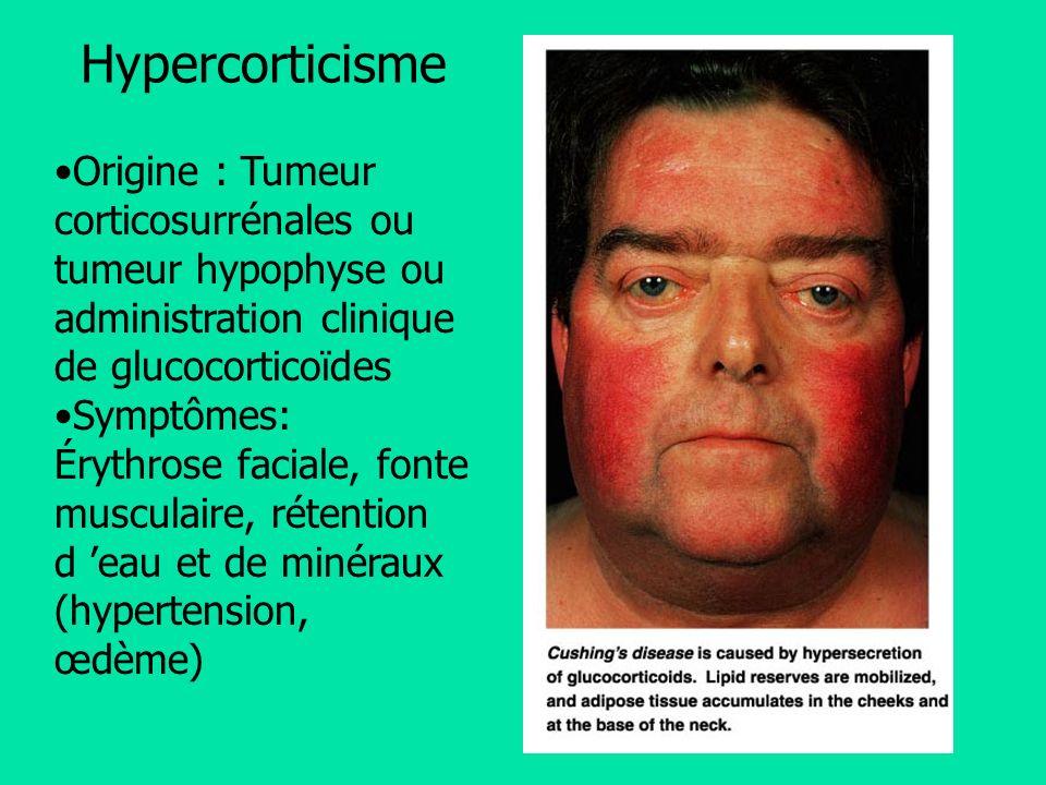 Origine : Tumeur corticosurrénales ou tumeur hypophyse ou administration clinique de glucocorticoïdes Symptômes: Érythrose faciale, fonte musculaire,
