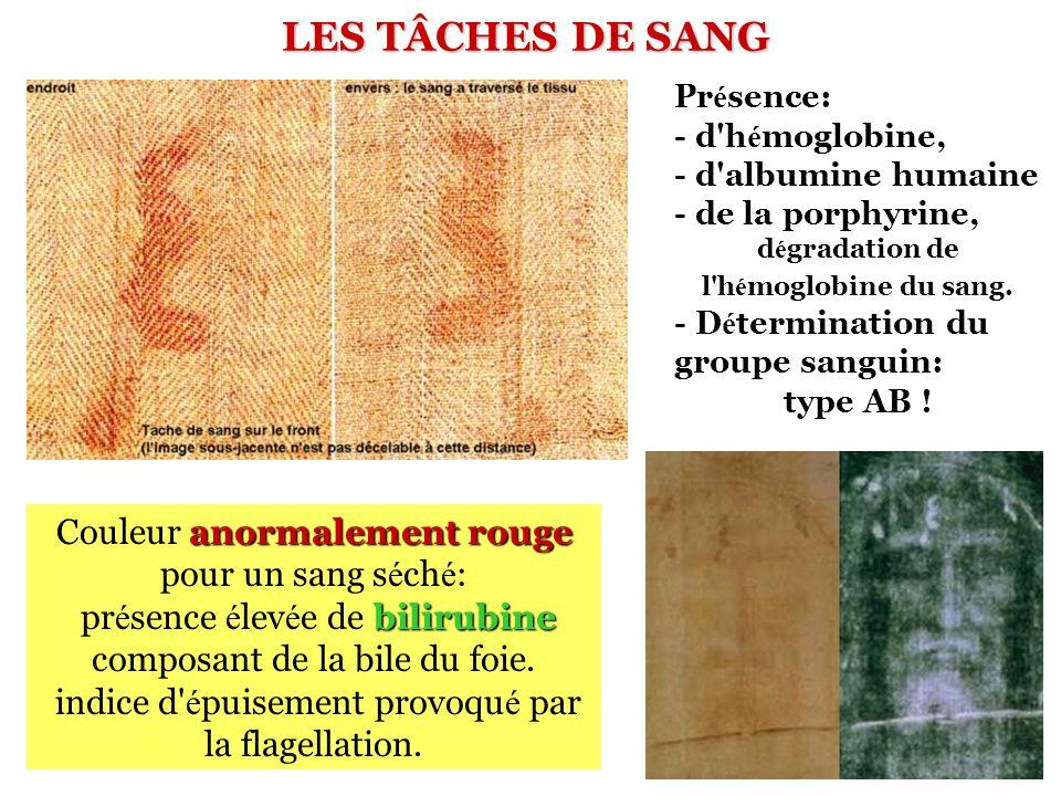 LES TÂCHES DE SANG anormalement rouge Couleur anormalement rouge pour un sang s é ch é : bilirubine pr é sence é lev é e de bilirubine composant de la