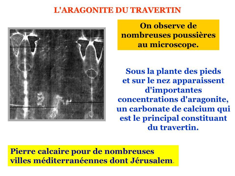 L'ARAGONITE DU TRAVERTIN Sous la plante des pieds et sur le nez apparaissent d'importantes concentrations d'aragonite, un carbonate de calcium qui est