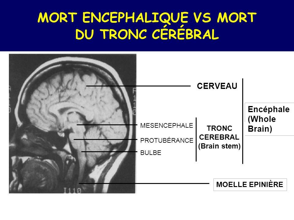 Artériographie Arrêt circulatoire Carotidien interne Arrêt circulatoire Vertébral