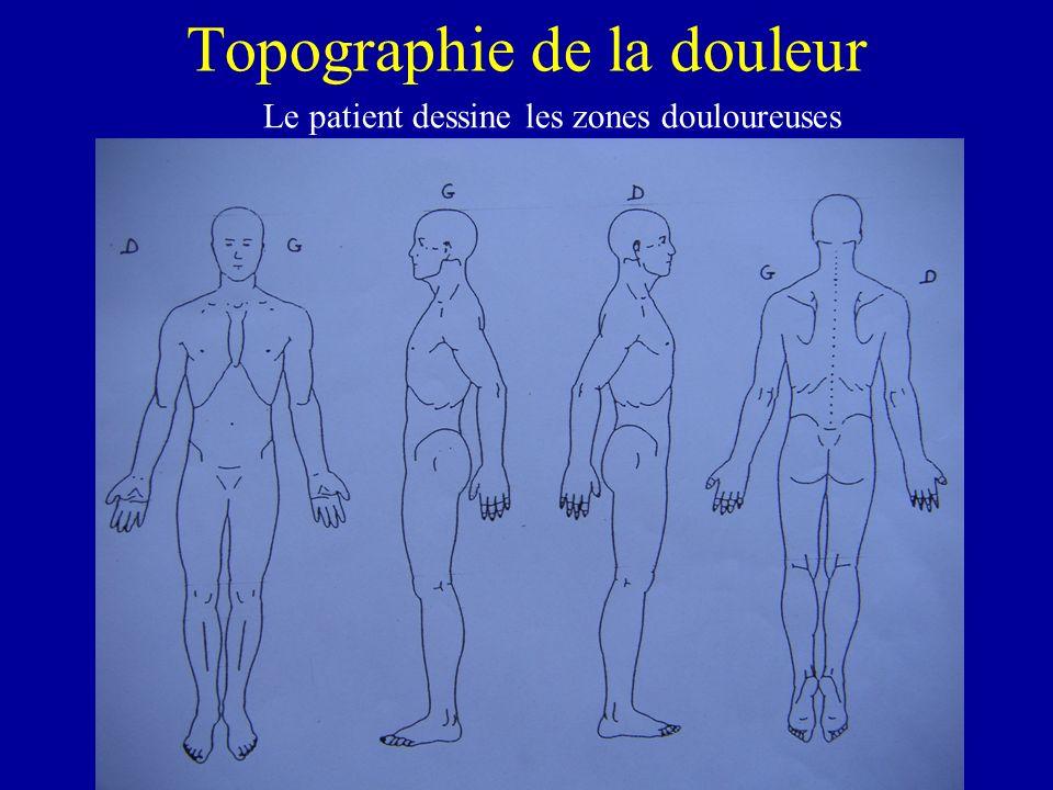 Topographie de la douleur Le patient dessine les zones douloureuses