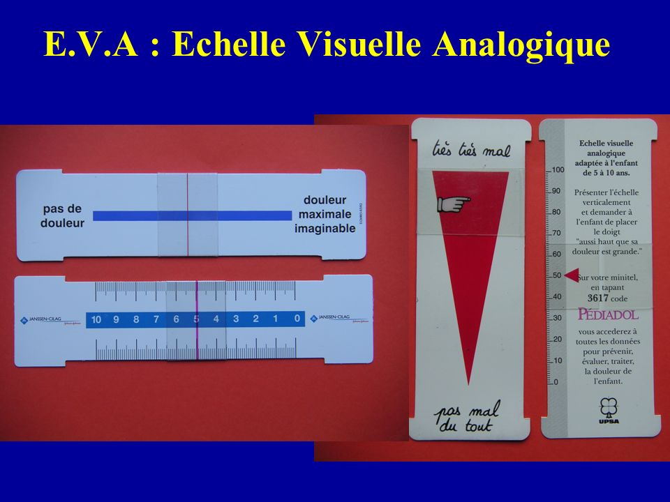 E.V.A : Echelle Visuelle Analogique