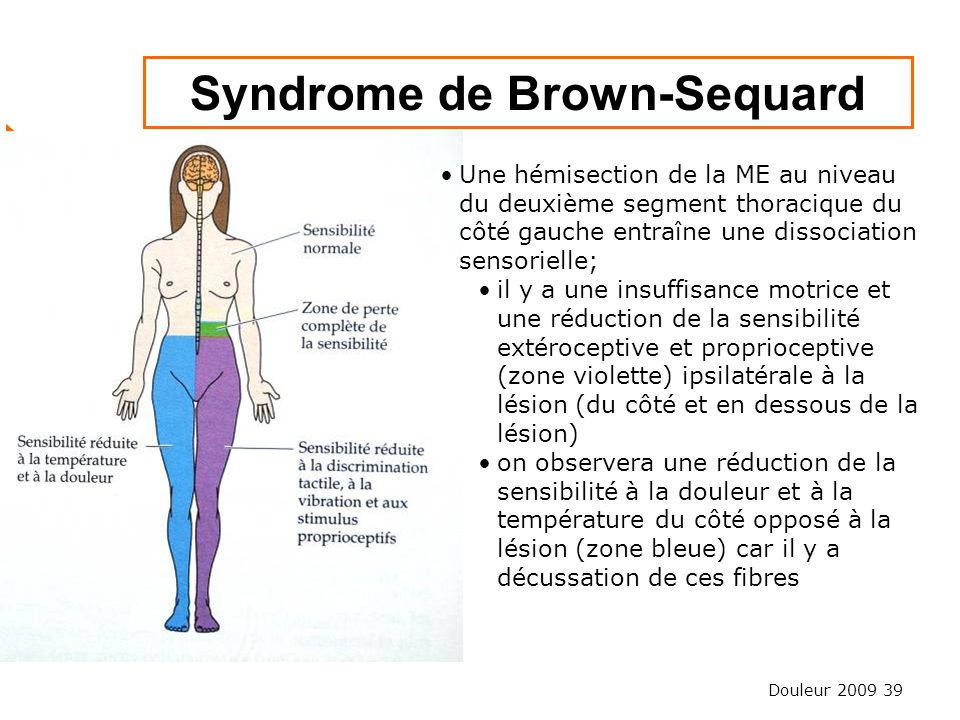 Douleur 2009 39 Syndrome de Brown-Sequard Une hémisection de la ME au niveau du deuxième segment thoracique du côté gauche entraîne une dissociation s