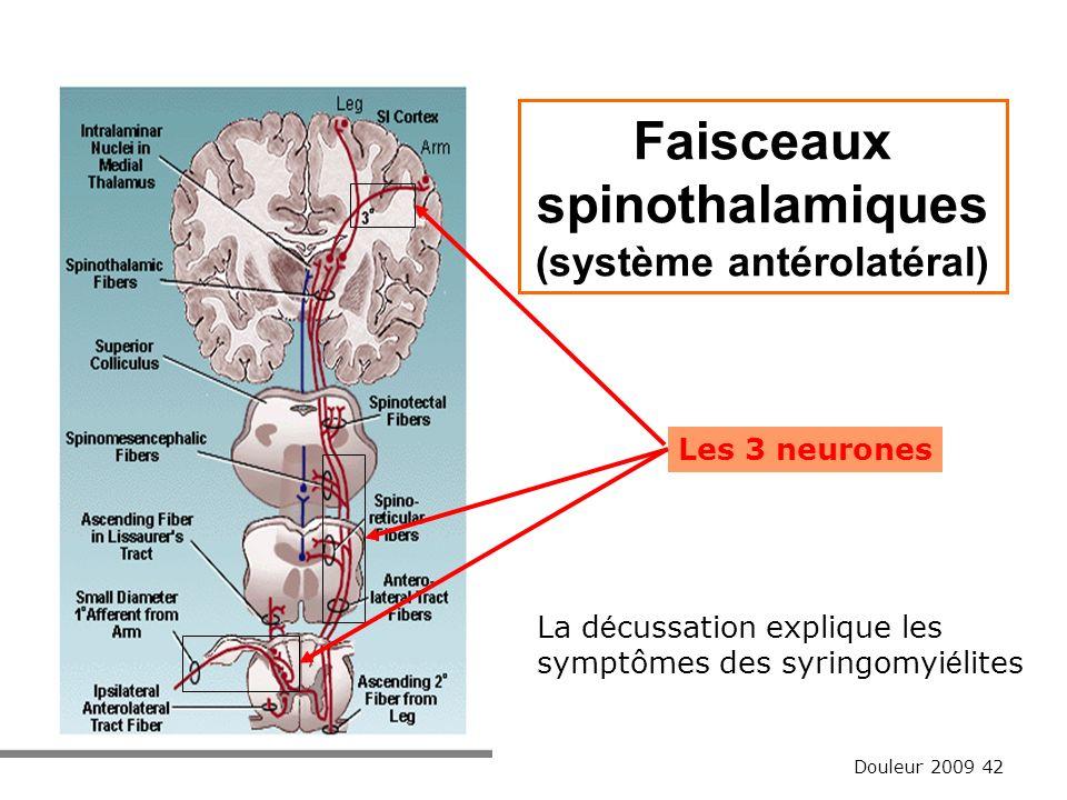 Douleur 2009 42 Faisceaux spinothalamiques (système antérolatéral) Les 3 neurones La d é cussation explique les symptômes des syringomyi é lites