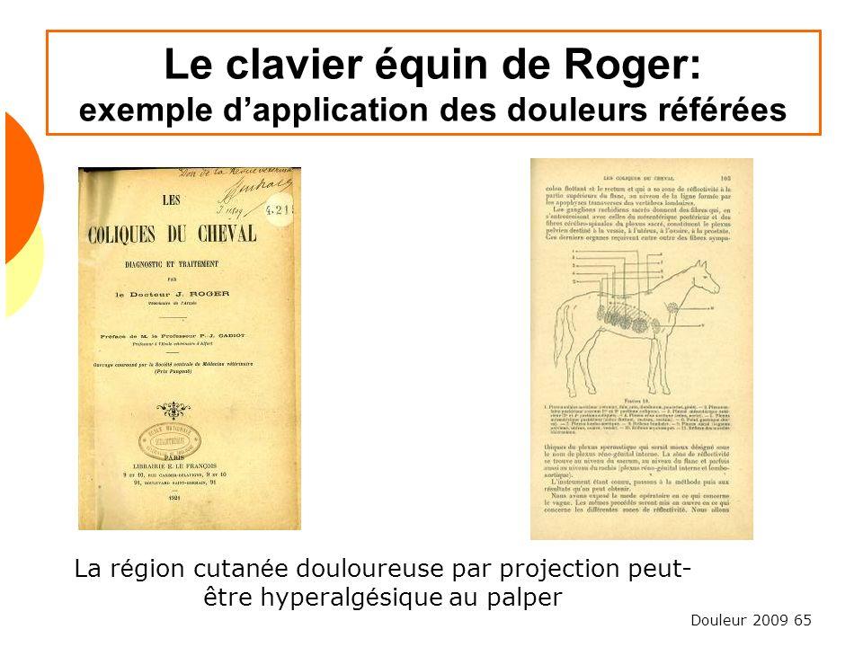 Douleur 2009 65 Le clavier équin de Roger: exemple dapplication des douleurs référées La r é gion cutan é e douloureuse par projection peut- être hype