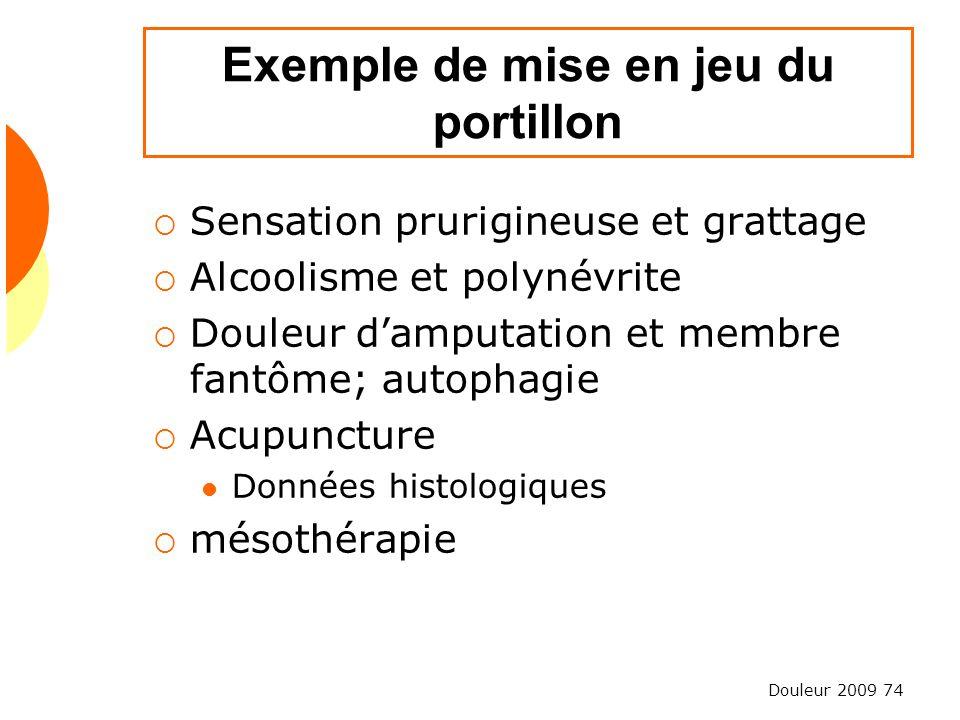 Douleur 2009 74 Exemple de mise en jeu du portillon Sensation prurigineuse et grattage Alcoolisme et polynévrite Douleur damputation et membre fantôme
