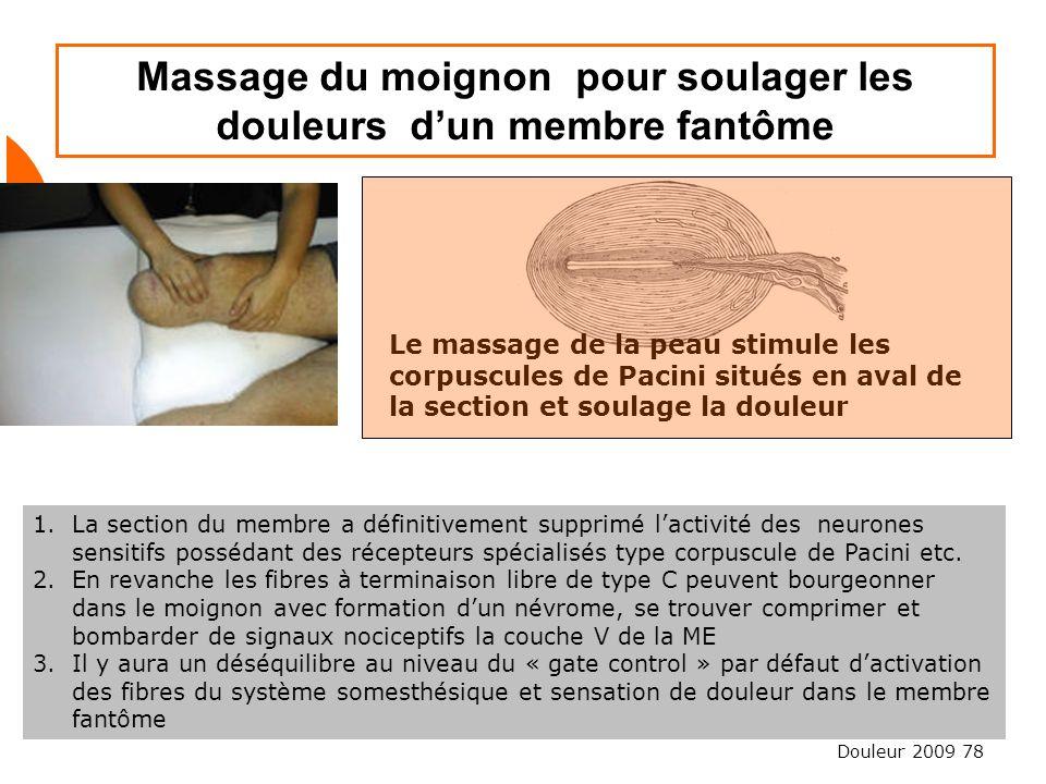 Douleur 2009 78 Massage du moignon pour soulager les douleurs dun membre fantôme 1.La section du membre a définitivement supprimé lactivité des neuron