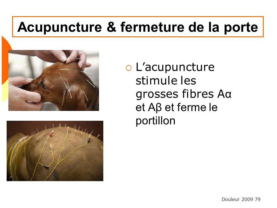 Douleur 2009 79 Acupuncture & fermeture de la porte Lacupuncture stimule les grosses fibres A α et Aβ et ferme le portillon