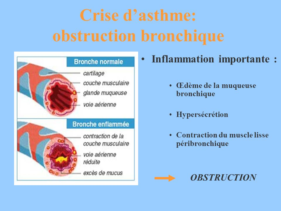 Crise dasthme: obstruction bronchique Inflammation importante : Œdème de la muqueuse bronchique Hypersécrétion Contraction du muscle lisse péribronchi
