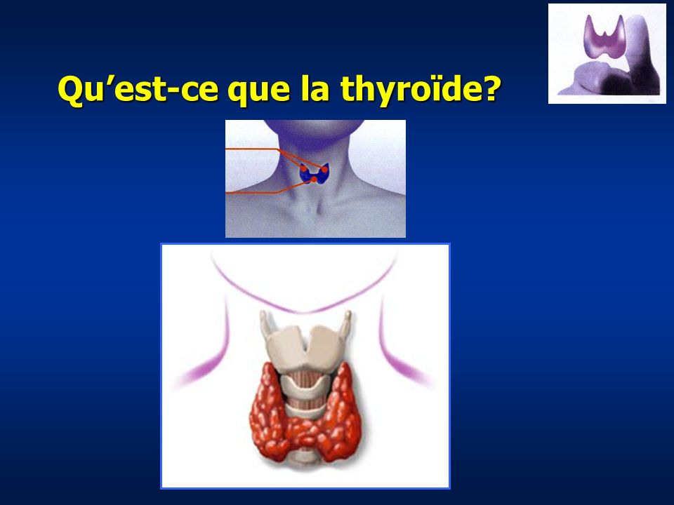 Epidémiologie des maladies de la thyroïde Hypertrophie thyroïdienne 10 à 14% Hypothyroïdie ou hyperthyroïdie avérée 1 à 2% Nodules thyroïdien palpable 4%, occulte 50%