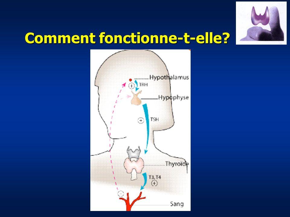 Comment prend-on en charge un problème thyroïdien.