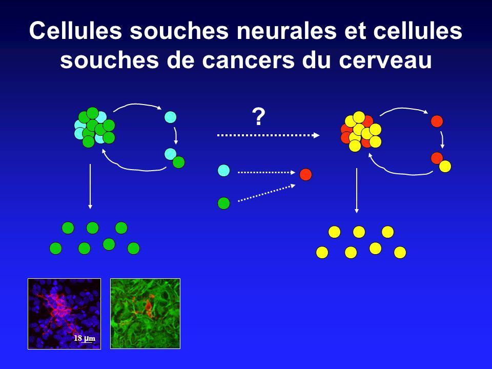 Cellules souches neurales et cellules souches de cancers du cerveau 18 µ m ?