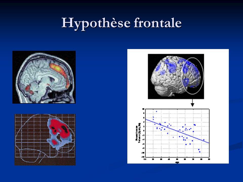 Hypothèse frontale