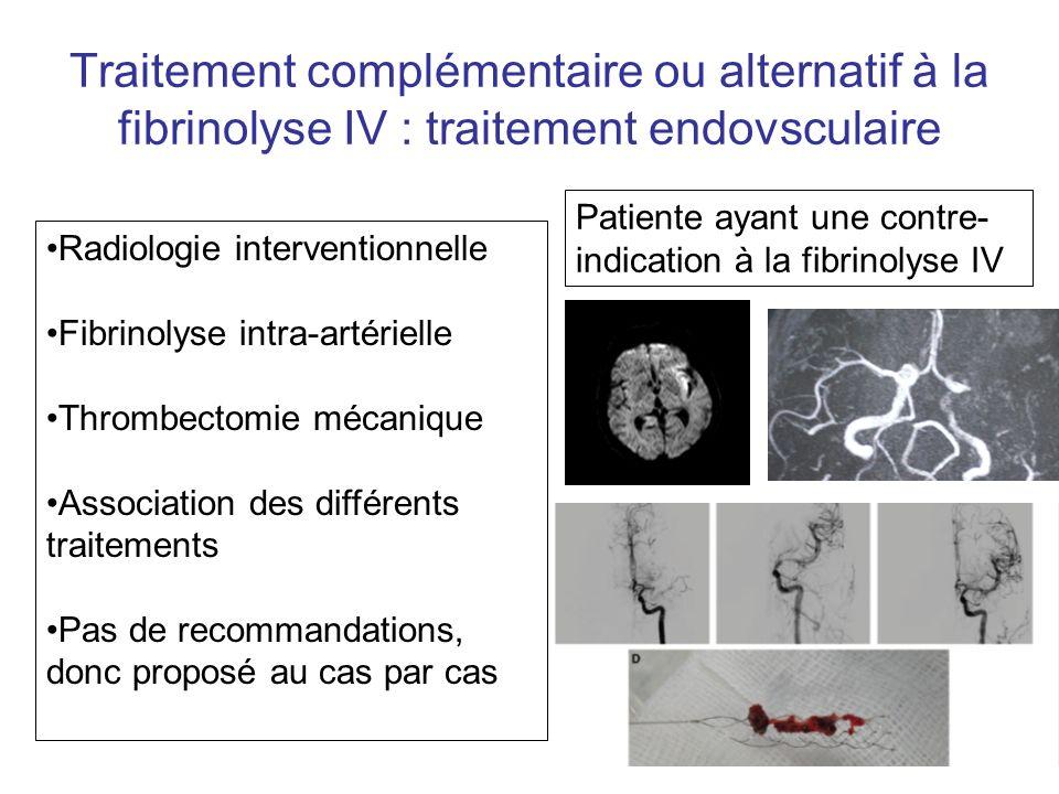Traitement complémentaire ou alternatif à la fibrinolyse IV : traitement endovsculaire Radiologie interventionnelle Fibrinolyse intra-artérielle Throm