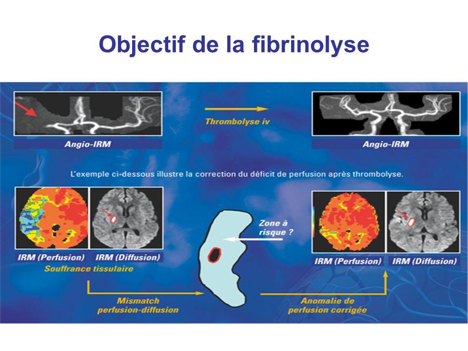 Objectif de la fibrinolyse