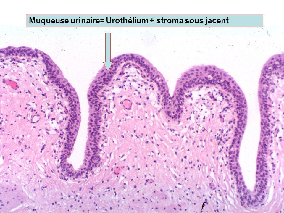 Urothélium (toutes les cellules épithéliales) Cellules superficielles ou cellules parapluie (umbrella) Cellules intermédiaires 2 à >10 cellules Basale