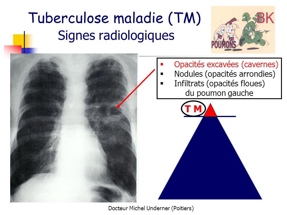 Docteur Michel Underner (Poitiers) Tuberculose maladie (TM) Signes radiologiques T M Opacités excavées (cavernes) Nodules (opacités arrondies) Infiltr
