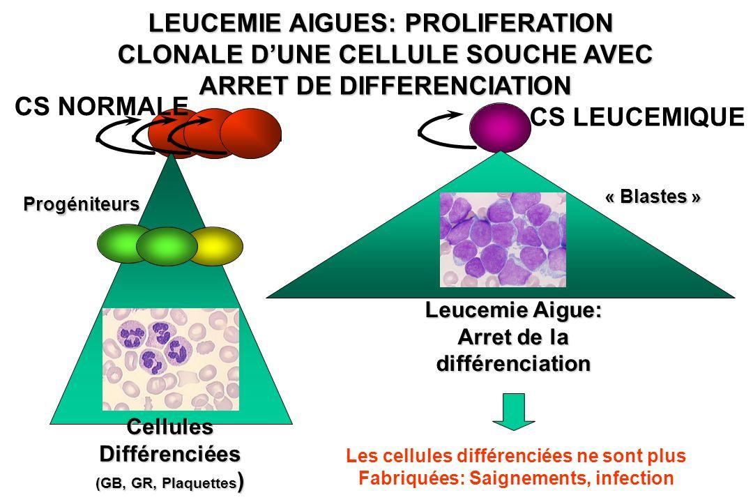 LEUCEMIE AIGUES: PROLIFERATION CLONALE DUNE CELLULE SOUCHE AVEC ARRET DE DIFFERENCIATION Stem CellulesDifférenciées (GB, GR, Plaquettes ) CS LEUCEMIQU