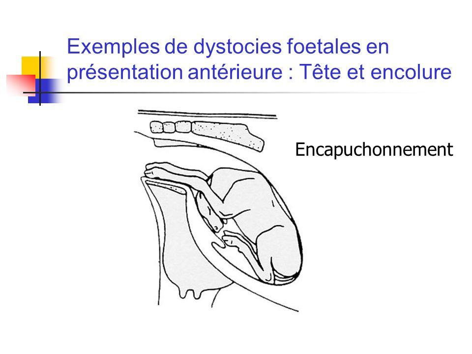 Exemples de dystocies foetales en présentation antérieure : Tête et encolure Encapuchonnement