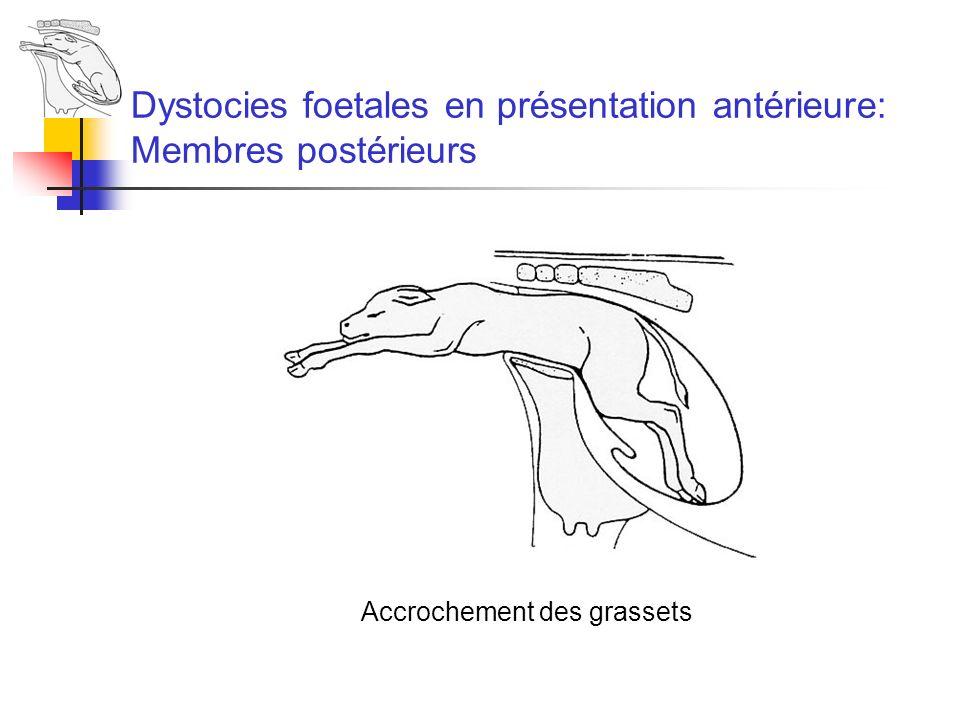 Dystocies foetales en présentation antérieure: Membres postérieurs Accrochement des grassets
