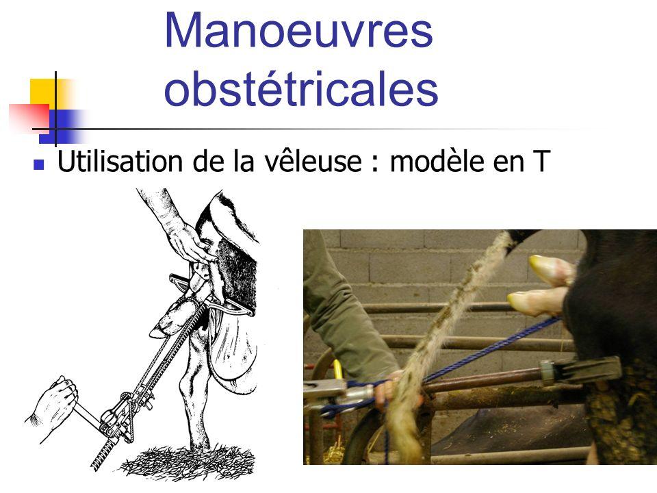 Manoeuvres obstétricales Utilisation de la vêleuse : modèle en T