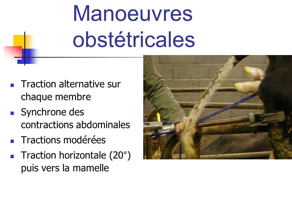 Manoeuvres obstétricales Traction alternative sur chaque membre Synchrone des contractions abdominales Tractions modérées Traction horizontale (20°) p