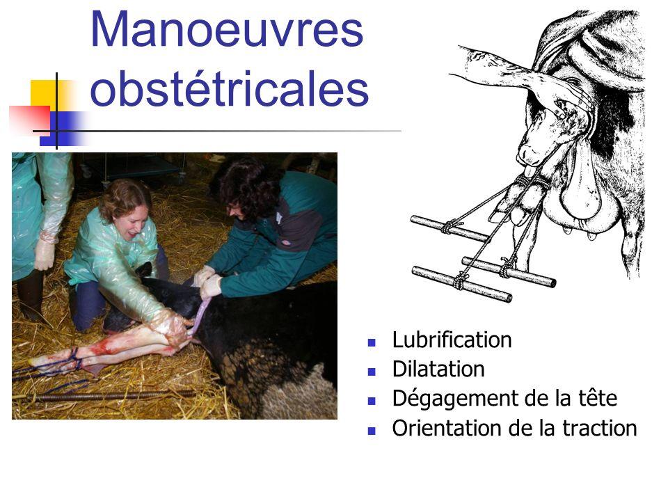 Manoeuvres obstétricales Lubrification Dilatation Dégagement de la tête Orientation de la traction