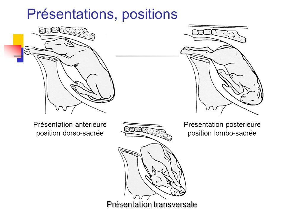 Présentations, positions Présentation antérieure position dorso-sacrée Présentation postérieure position lombo-sacrée Présentation transversale