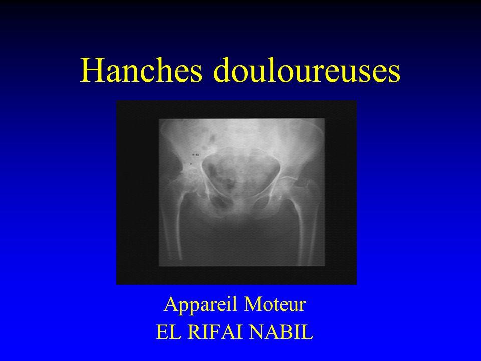 Hanches douloureuses Appareil Moteur EL RIFAI NABIL