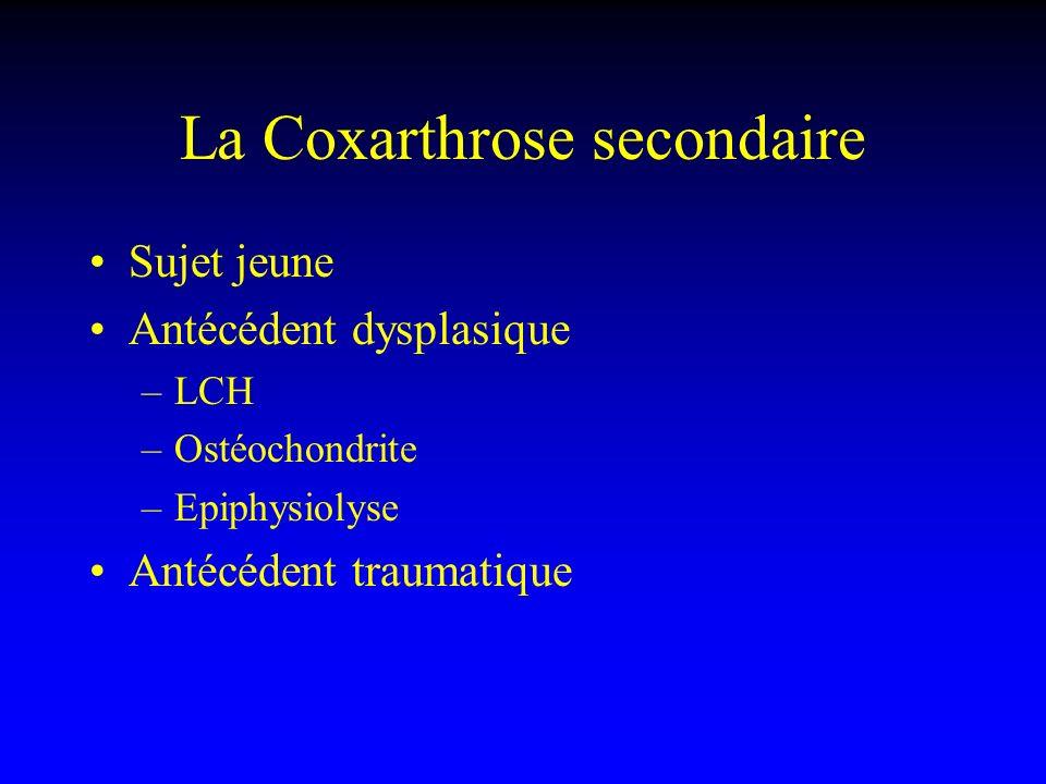 La Coxarthrose secondaire Sujet jeune Antécédent dysplasique –LCH –Ostéochondrite –Epiphysiolyse Antécédent traumatique