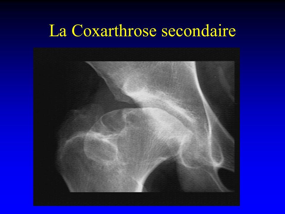 La Coxarthrose secondaire