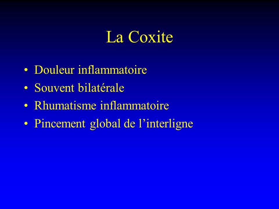 La Coxite Douleur inflammatoire Souvent bilatérale Rhumatisme inflammatoire Pincement global de linterligne