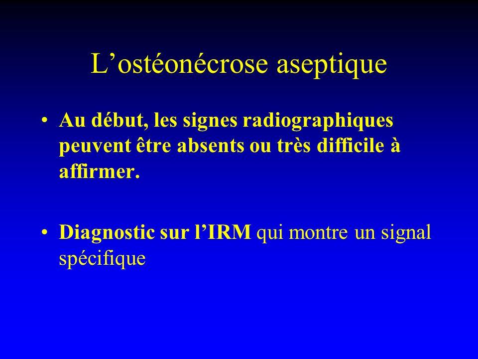 Lostéonécrose aseptique Au début, les signes radiographiques peuvent être absents ou très difficile à affirmer. Diagnostic sur lIRM qui montre un sign