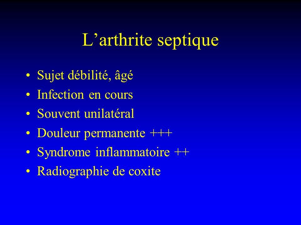 Larthrite septique Sujet débilité, âgé Infection en cours Souvent unilatéral Douleur permanente +++ Syndrome inflammatoire ++ Radiographie de coxite